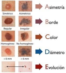 tipos de lunares melanomas