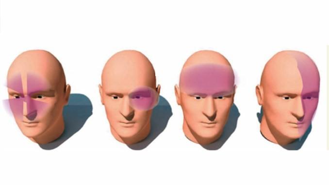diferentes zonas de dolor en cefaleas