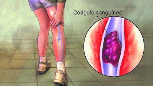 coágulo sanguíneo